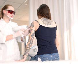 usuwanie tatuazu